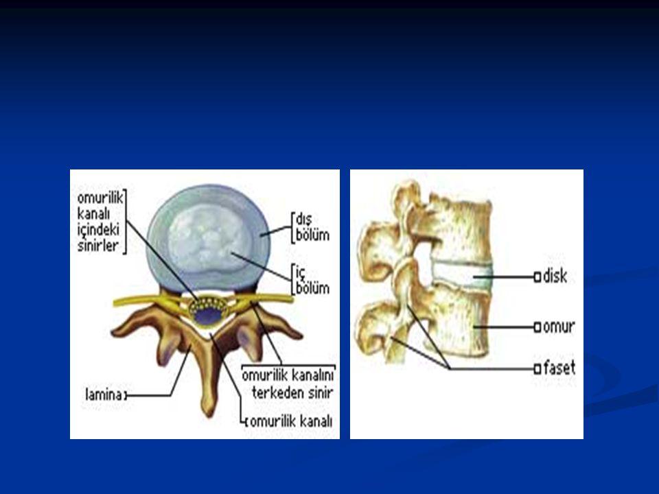 BEL AĞRISI NEDENLERİ-1 1)Kemik yapılara bağlı bel ağrıları (spinal kaynaklı) 1)Kemik yapılara bağlı bel ağrıları (spinal kaynaklı) A.