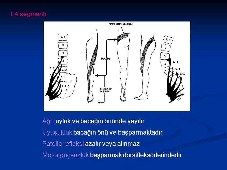 L4 segmenti Ağrı uyluk ve bacağın önünde yayılır Uyuşukluk bacağın önü ve başparmaktadır Patella refleksi azalır veya alınmaz Motor güçsüzlük başparmak dorsifleksörlerindedir