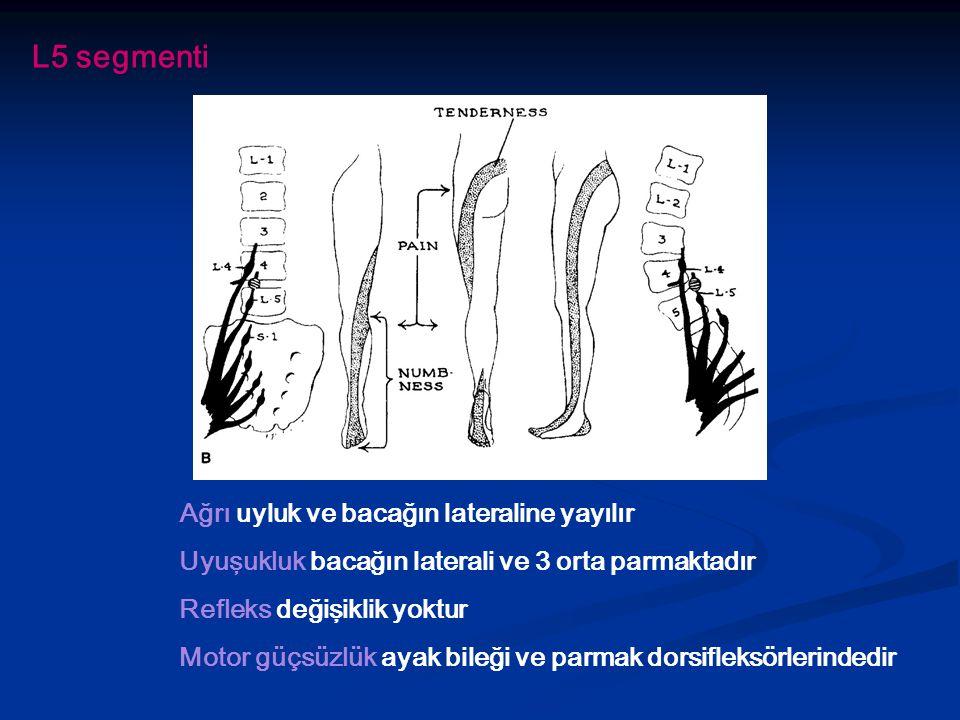 Ağrı uyluk ve bacağın lateraline yayılır Uyuşukluk bacağın laterali ve 3 orta parmaktadır Refleks değişiklik yoktur Motor güçsüzlük ayak bileği ve parmak dorsifleksörlerindedir L5 segmenti