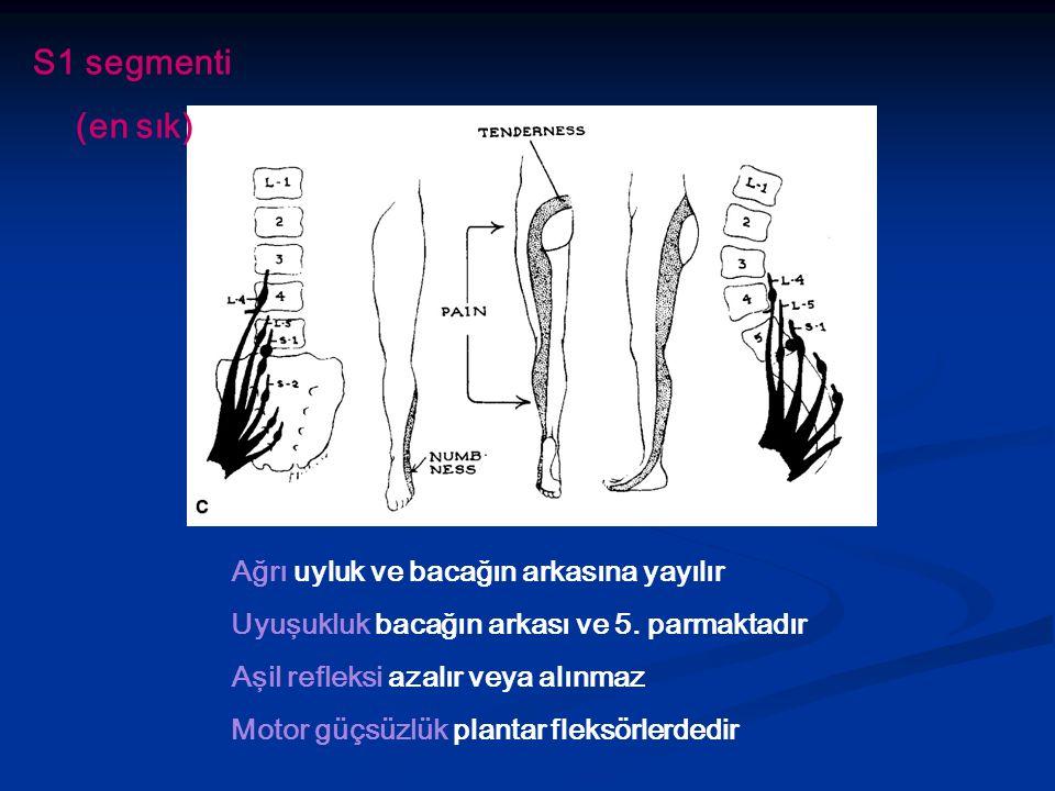 Ağrı uyluk ve bacağın arkasına yayılır Uyuşukluk bacağın arkası ve 5. parmaktadır Aşil refleksi azalır veya alınmaz Motor güçsüzlük plantar fleksörler