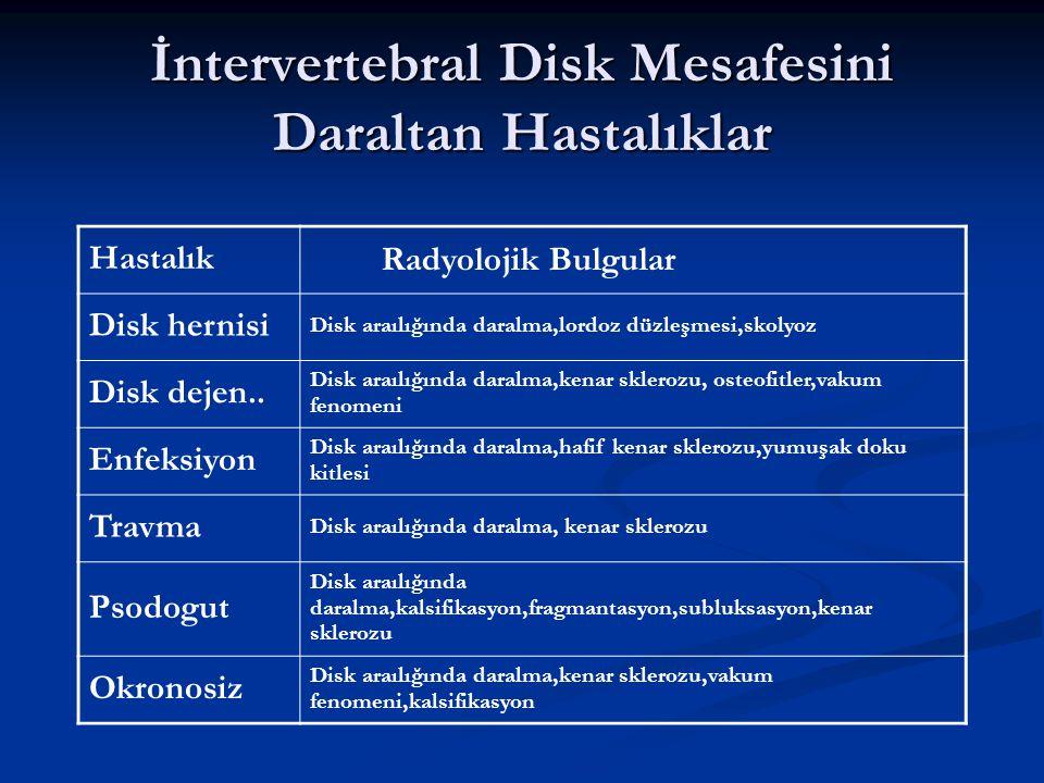 İntervertebral Disk Mesafesini Daraltan Hastalıklar Hastalık Radyolojik Bulgular Disk hernisi Disk araılığında daralma,lordoz düzleşmesi,skolyoz Disk dejen..