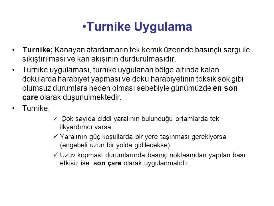 Turnike Uygulama Turnike; Kanayan atardamarın tek kemik üzerinde basınçlı sargı ile sıkıştırılması ve kan akışının durdurulmasıdır. Turnike uygulaması