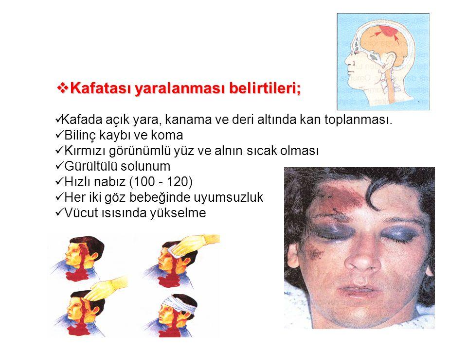  Kafatası yaralanması belirtileri; Kafada açık yara, kanama ve deri altında kan toplanması. Bilinç kaybı ve koma Kırmızı görünümlü yüz ve alnın sıcak