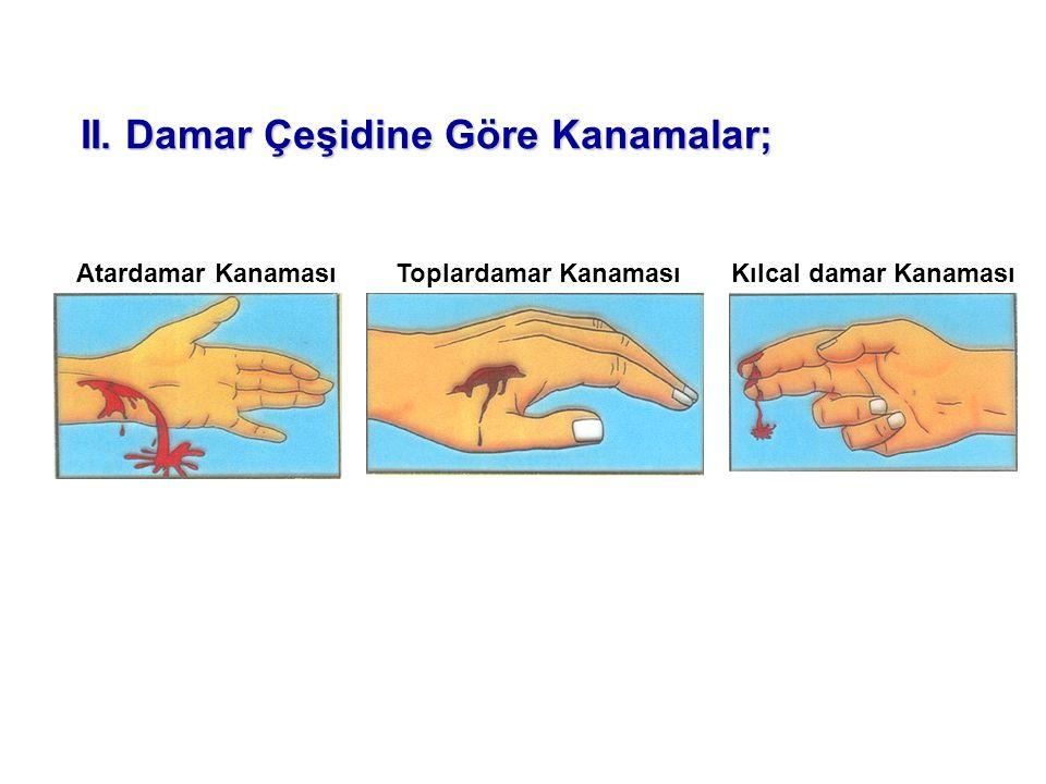Atardamar KanamasıToplardamar KanamasıKılcal damar Kanaması II. Damar Çeşidine Göre Kanamalar;