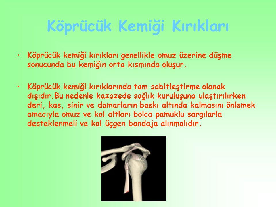 Köprücük Kemiği Kırıkları Köprücük kemiği kırıkları genellikle omuz üzerine düşme sonucunda bu kemiğin orta kısmında oluşur. Köprücük kemiği kırıkları