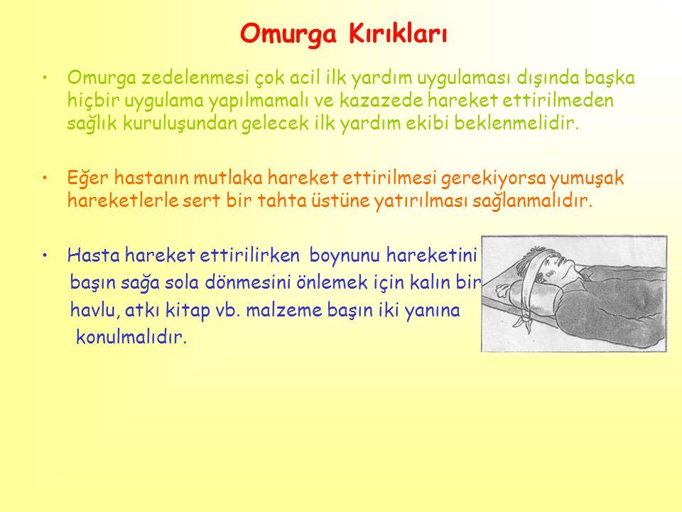 Omurga Kırıkları Omurga zedelenmesi çok acil ilk yardım uygulaması dışında başka hiçbir uygulama yapılmamalı ve kazazede hareket ettirilmeden sağlık k