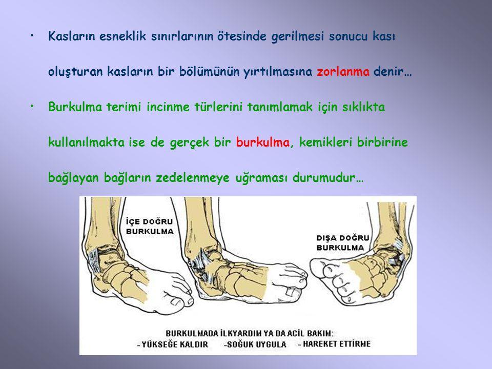 Kol ve Bacak Kırıkları (2) Bacak kırıklarında, atelin birisi bacaklar arasına diğeri de bacağın dış yanına yerleştirilerek ateller sargılarla bedene bağlanmalıdır.