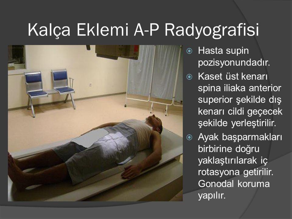 Kalça Eklemi A-P Radyografisi  Hasta supin pozisyonundadır.  Kaset üst kenarı spina iliaka anterior superior şekilde dış kenarı cildi geçecek şekild