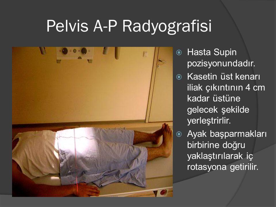 Pelvis A-P Radyografisi  Hasta Supin pozisyonundadır.  Kasetin üst kenarı iliak çıkıntının 4 cm kadar üstüne gelecek şekilde yerleştrirlir.  Ayak b