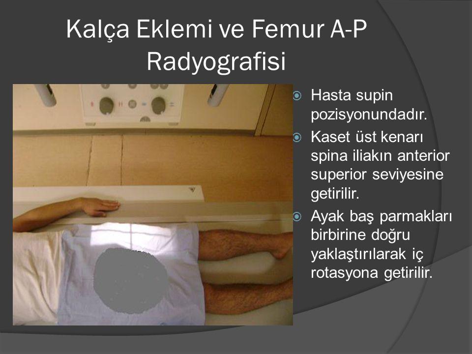 Kalça Eklemi ve Femur A-P Radyografisi  Hasta supin pozisyonundadır.  Kaset üst kenarı spina iliakın anterior superior seviyesine getirilir.  Ayak