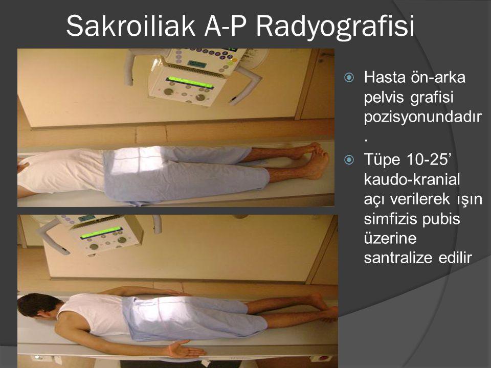 Sakroiliak A-P Radyografisi  Hasta ön-arka pelvis grafisi pozisyonundadır.  Tüpe 10-25' kaudo-kranial açı verilerek ışın simfizis pubis üzerine sant