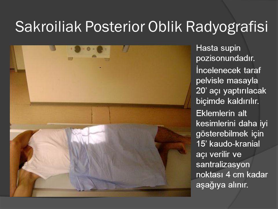 Sakroiliak Posterior Oblik Radyografisi  Hasta supin pozisonundadır.  İncelenecek taraf pelvisle masayla 20' açı yaptırılacak biçimde kaldırılır. 