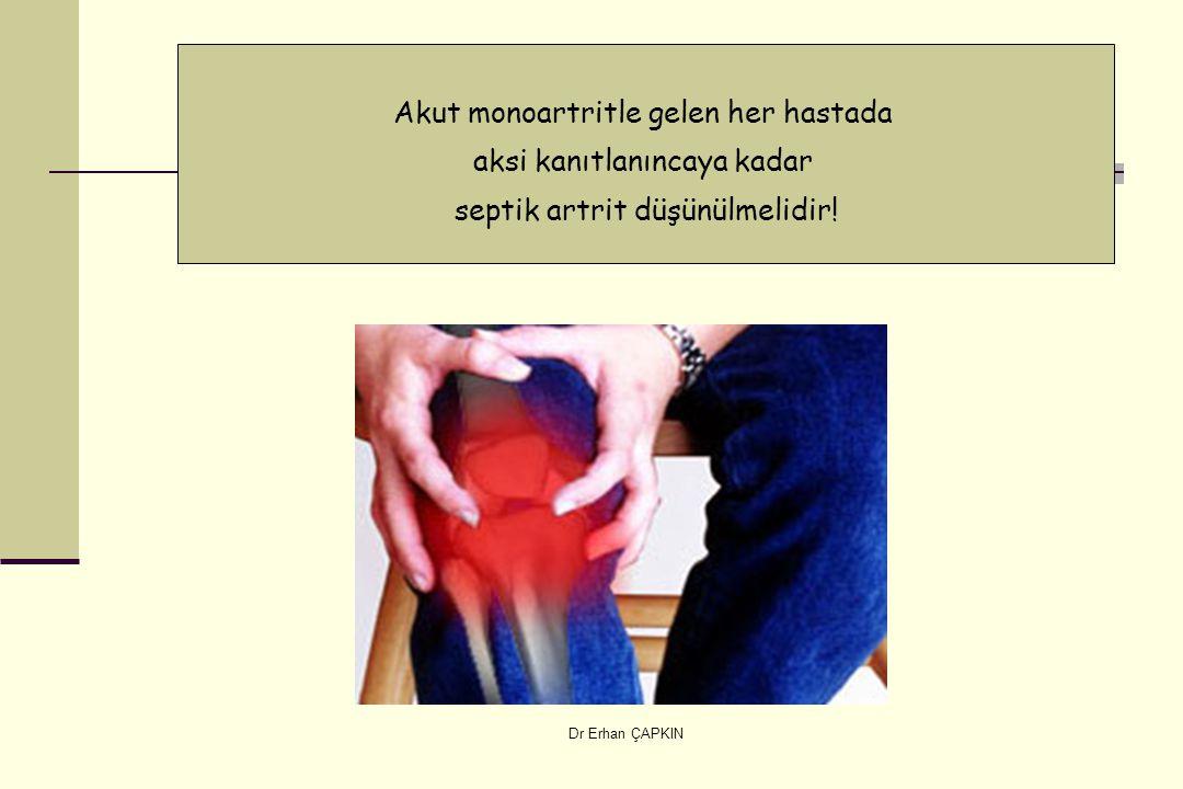 Dr Erhan ÇAPKIN Akut monoartritle gelen her hastada aksi kanıtlanıncaya kadar septik artrit düşünülmelidir!