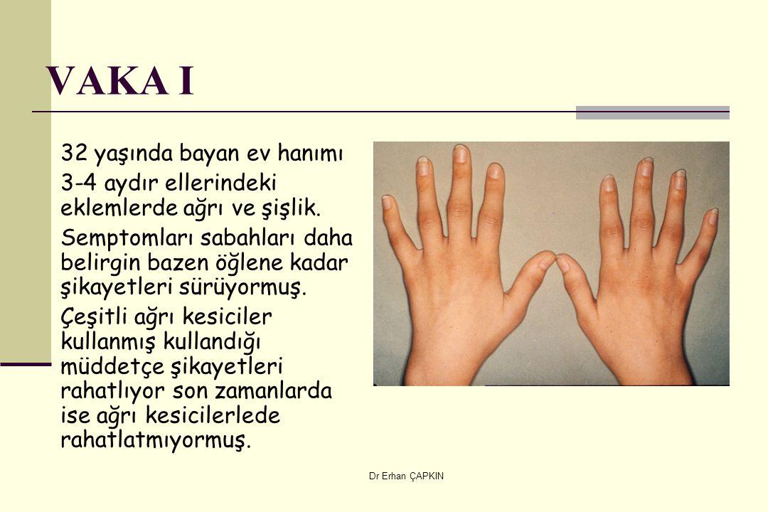 Dr Erhan ÇAPKIN VAKA I 32 yaşında bayan ev hanımı 3-4 aydır ellerindeki eklemlerde ağrı ve şişlik. Semptomları sabahları daha belirgin bazen öğlene ka