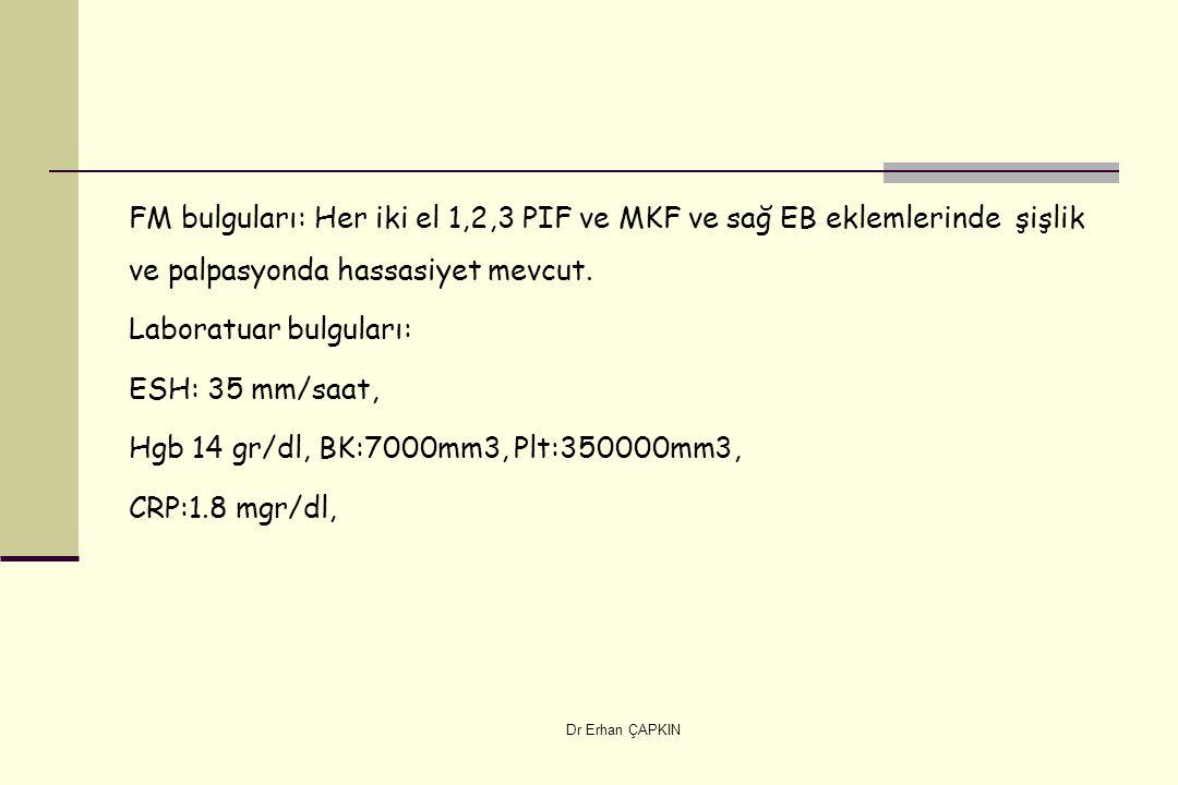 Dr Erhan ÇAPKIN FM bulguları: Her iki el 1,2,3 PIF ve MKF ve sağ EB eklemlerinde şişlik ve palpasyonda hassasiyet mevcut. Laboratuar bulguları: ESH: 3