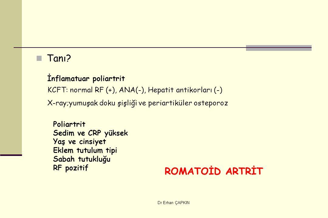Dr Erhan ÇAPKIN Tanı? İnflamatuar poliartrit KCFT: normal RF (+), ANA(-), Hepatit antikorları (-) X-ray;yumuşak doku şişliği ve periartiküler osteporo