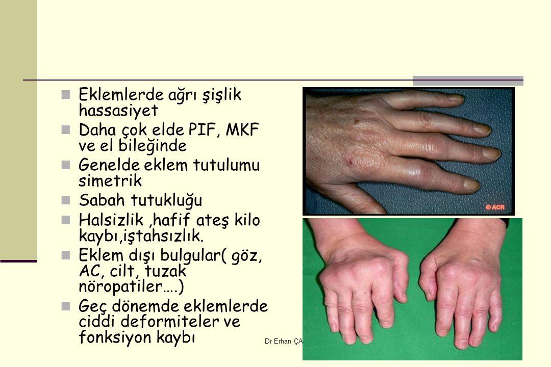 Dr Erhan ÇAPKIN Eklemlerde ağrı şişlik hassasiyet Daha çok elde PIF, MKF ve el bileğinde Genelde eklem tutulumu simetrik Sabah tutukluğu Halsizlik,haf