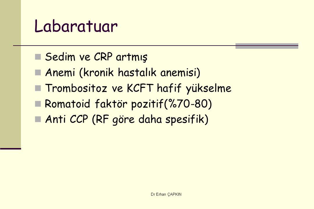 Dr Erhan ÇAPKIN Labaratuar Sedim ve CRP artmış Anemi (kronik hastalık anemisi) Trombositoz ve KCFT hafif yükselme Romatoid faktör pozitif(%70-80) Anti CCP (RF göre daha spesifik)