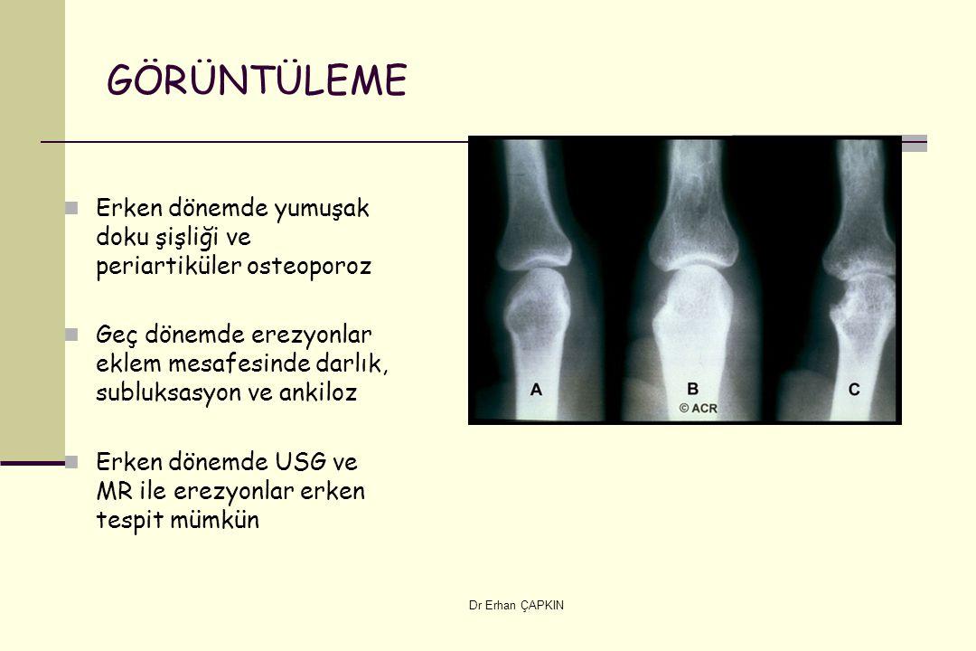 Dr Erhan ÇAPKIN GÖRÜNTÜLEME Erken dönemde yumuşak doku şişliği ve periartiküler osteoporoz Geç dönemde erezyonlar eklem mesafesinde darlık, subluksasyon ve ankiloz Erken dönemde USG ve MR ile erezyonlar erken tespit mümkün