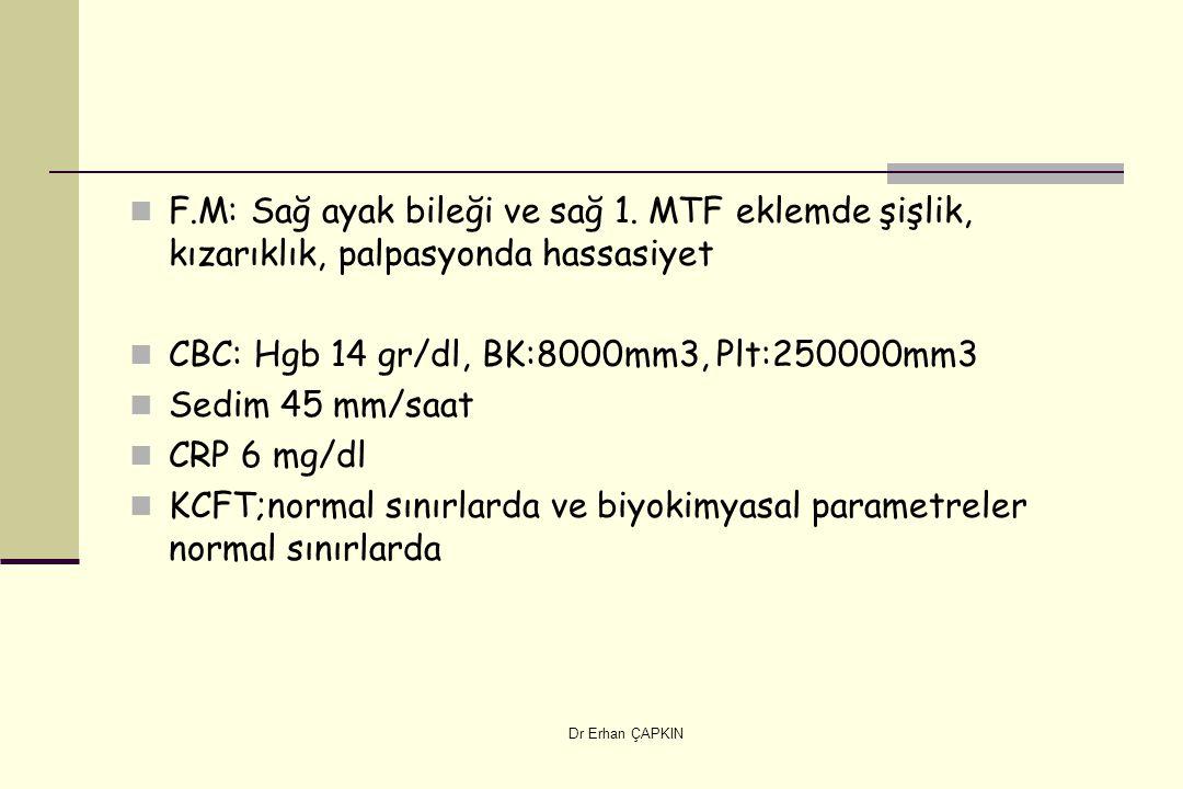 Dr Erhan ÇAPKIN F.M: Sağ ayak bileği ve sağ 1. MTF eklemde şişlik, kızarıklık, palpasyonda hassasiyet CBC: Hgb 14 gr/dl, BK:8000mm3, Plt:250000mm3 Sed