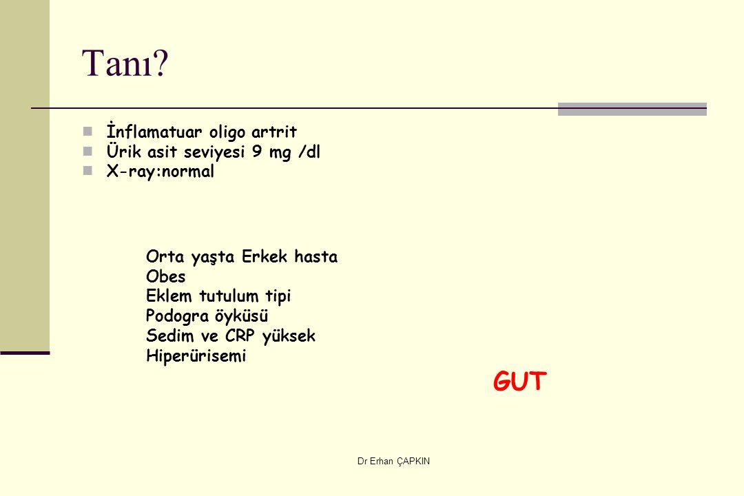 Dr Erhan ÇAPKIN Tanı? İnflamatuar oligo artrit Ürik asit seviyesi 9 mg /dl X-ray:normal Orta yaşta Erkek hasta Obes Eklem tutulum tipi Podogra öyküsü