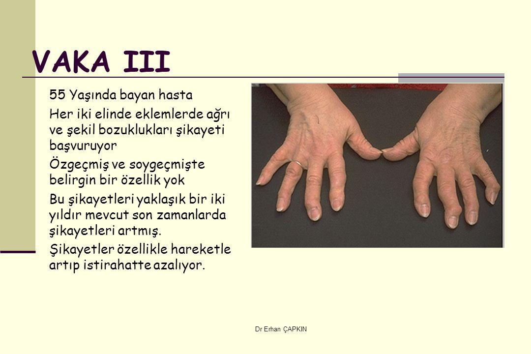 Dr Erhan ÇAPKIN VAKA III 55 Yaşında bayan hasta Her iki elinde eklemlerde ağrı ve şekil bozuklukları şikayeti başvuruyor Özgeçmiş ve soygeçmişte belirgin bir özellik yok Bu şikayetleri yaklaşık bir iki yıldır mevcut son zamanlarda şikayetleri artmış.