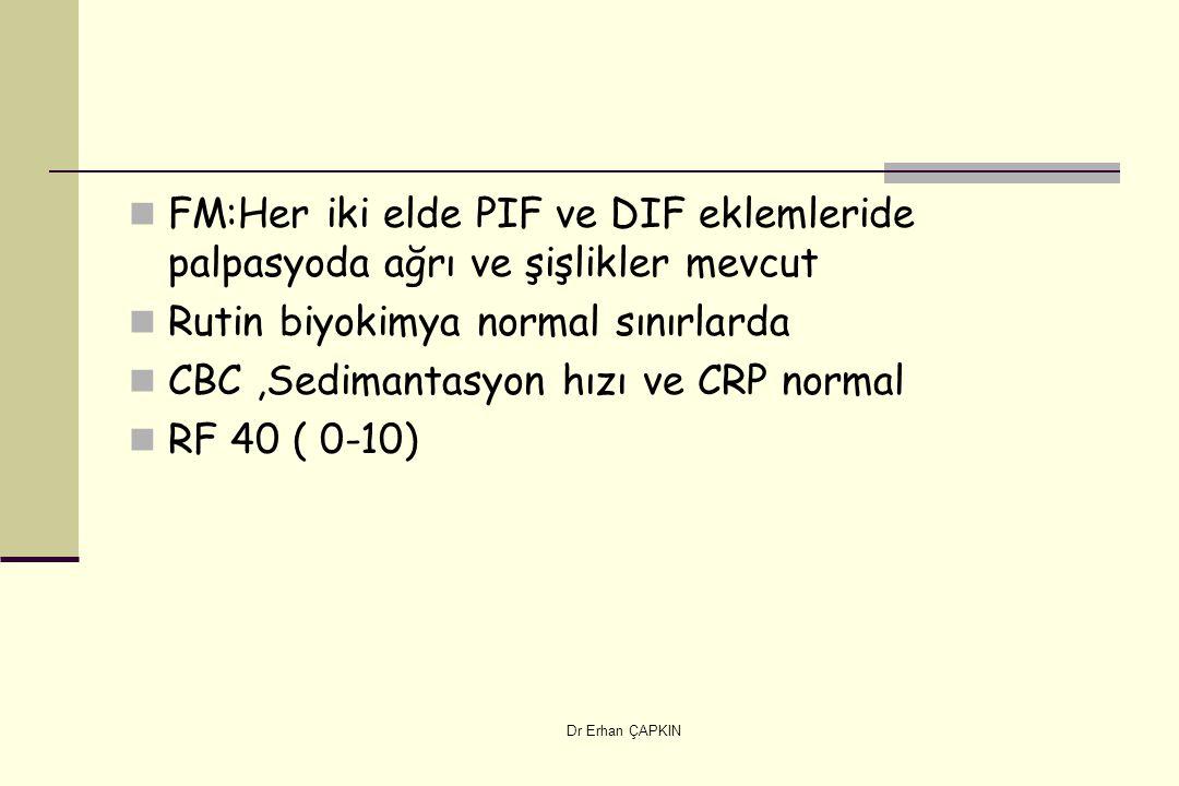 Dr Erhan ÇAPKIN FM:Her iki elde PIF ve DIF eklemleride palpasyoda ağrı ve şişlikler mevcut Rutin biyokimya normal sınırlarda CBC,Sedimantasyon hızı ve CRP normal RF 40 ( 0-10)