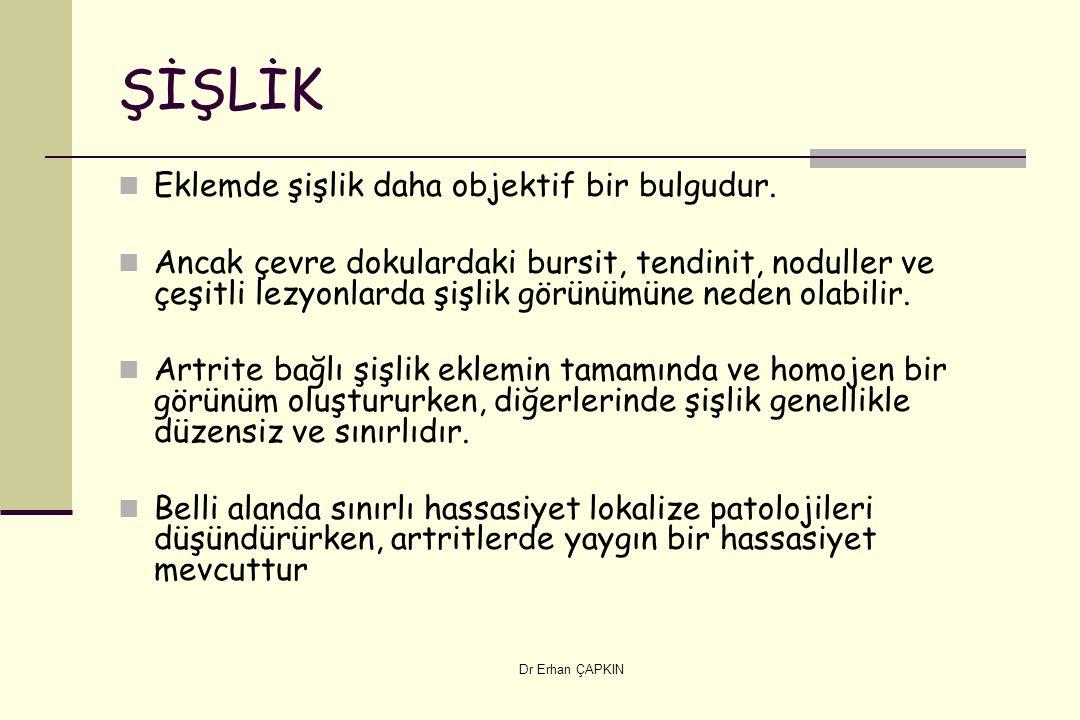 Dr Erhan ÇAPKIN ŞİŞLİK Eklemde şişlik daha objektif bir bulgudur.