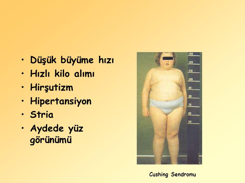 Düşük büyüme hızı Hızlı kilo alımı Hirşutizm Hipertansiyon Stria Aydede yüz görünümü Cushing Sendromu