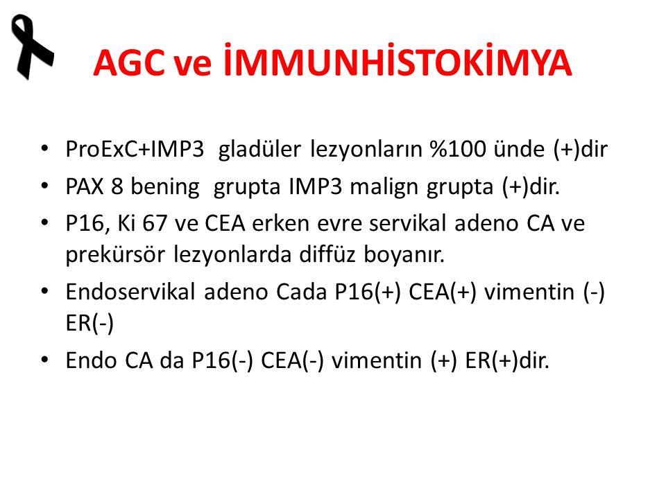 AGC ve İMMUNHİSTOKİMYA ProExC+IMP3 gladüler lezyonların %100 ünde (+)dir PAX 8 bening grupta IMP3 malign grupta (+)dir.