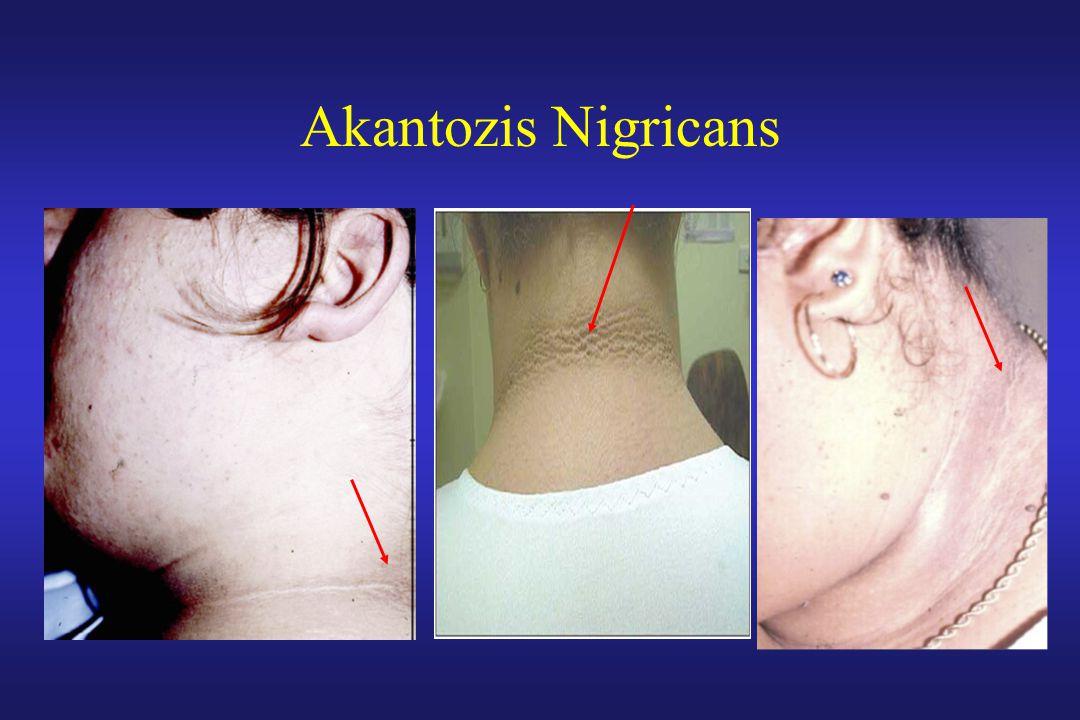 Akantozis Nigricans
