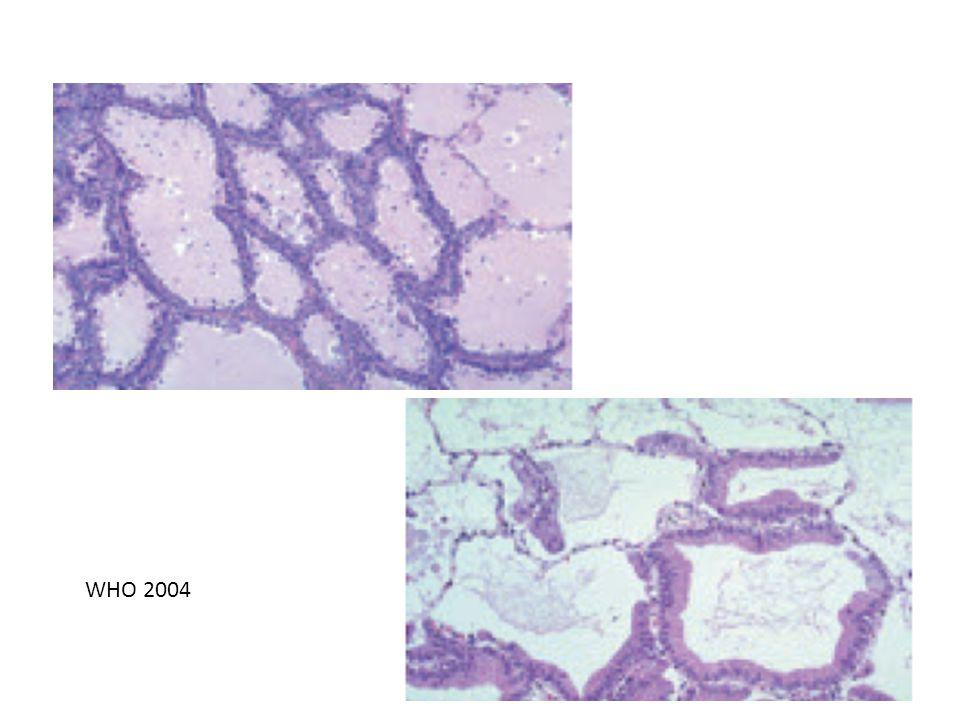 Adenokarsinoma a.Asiner b. Papiller c. Bronkioloalveolar karsinoma d.