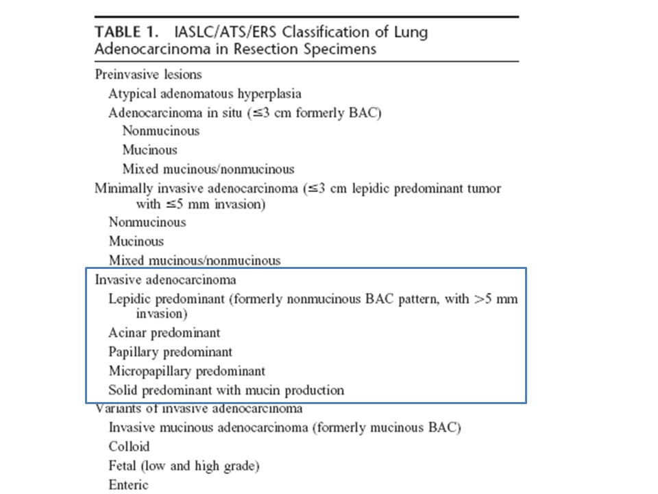 LepidicAciner Micropapillary Papillary Solid