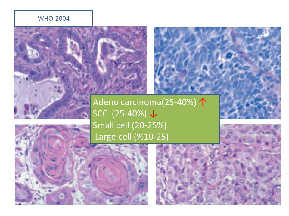Adeno carcinoma(25-40%) ↑ SCC (25-40%) ↓ Small cell (20-25%) Large cell (%10-25) WHO 2004