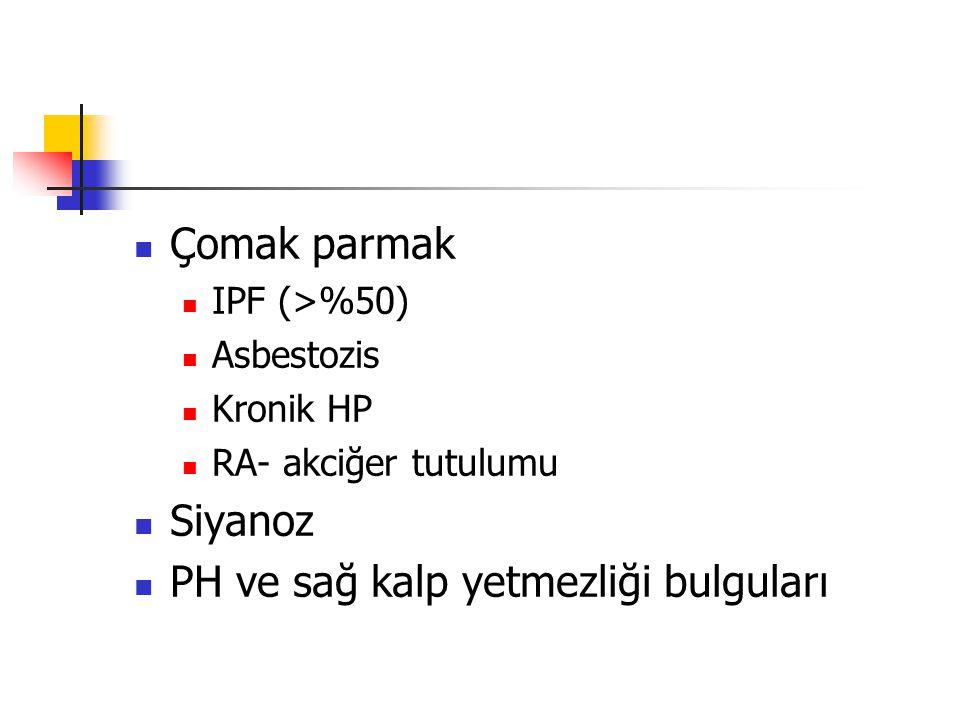 Çomak parmak IPF (>%50) Asbestozis Kronik HP RA- akciğer tutulumu Siyanoz PH ve sağ kalp yetmezliği bulguları
