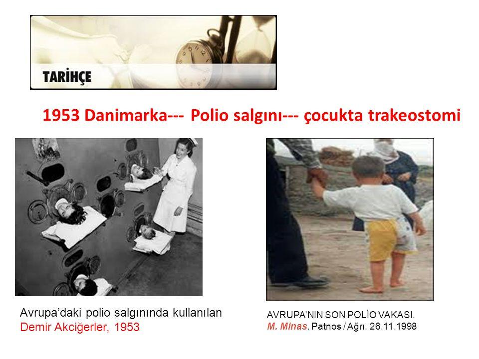 1953 Danimarka--- Polio salgını--- çocukta trakeostomi AVRUPA'NIN SON POLİO VAKASI. M. Minas. Patnos / Ağrı. 26.11.1998 Avrupa'daki polio salgınında k