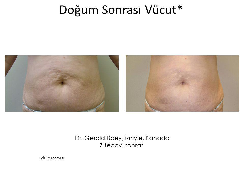 Dr. Gerald Boey, izniyle, Kanada 7 tedavi sonrası Doğum Sonrası Vücut* Selülit Tedavisi