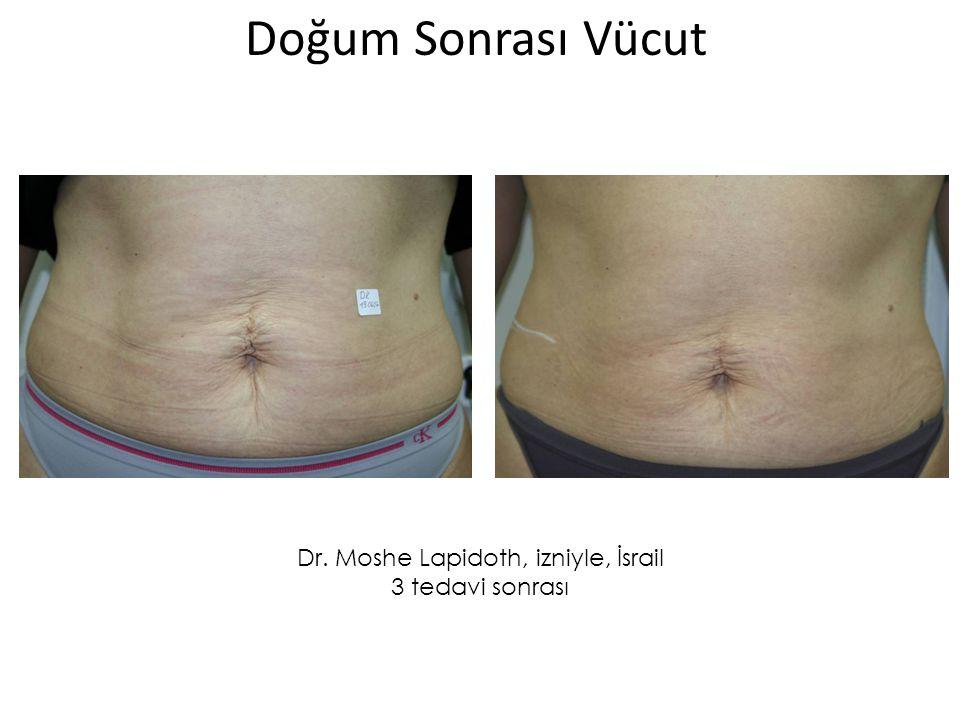 Dr. Moshe Lapidoth, izniyle, İsrail 3 tedavi sonrası Doğum Sonrası Vücut