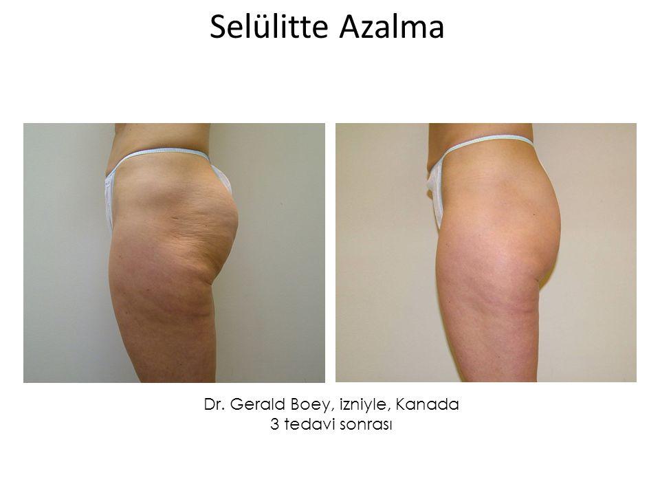 Dr. Gerald Boey, izniyle, Kanada 3 tedavi sonrası Selülitte Azalma