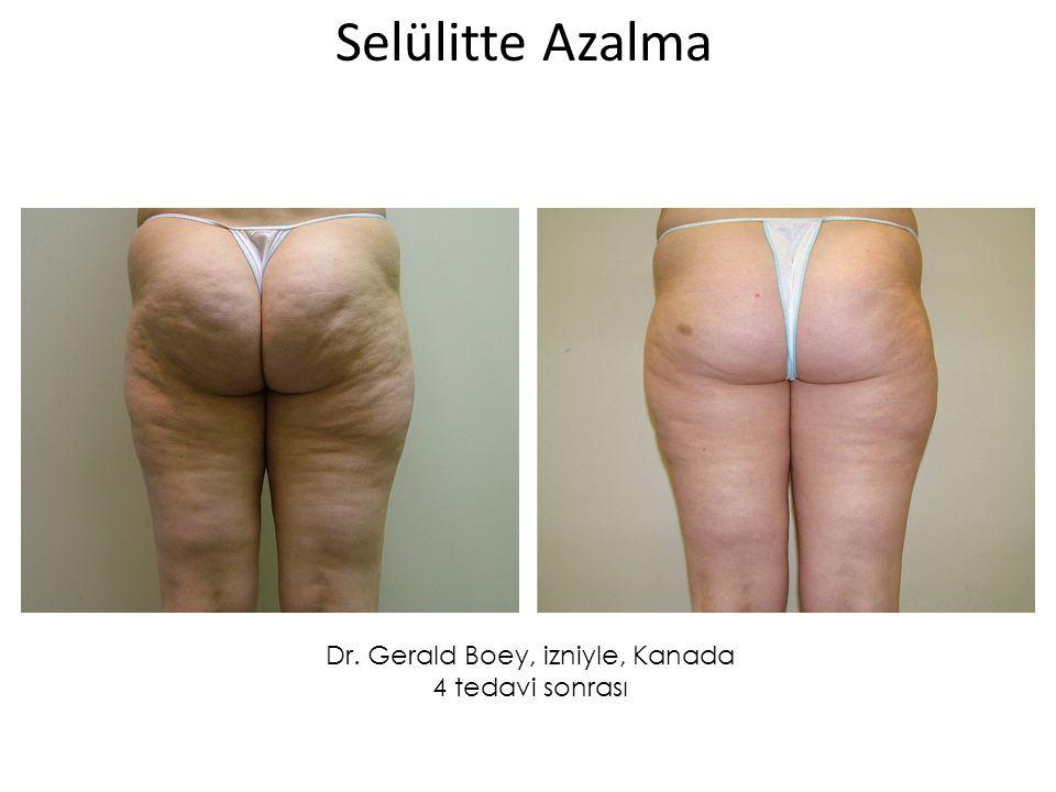 Dr. Gerald Boey, izniyle, Kanada 4 tedavi sonrası Selülitte Azalma