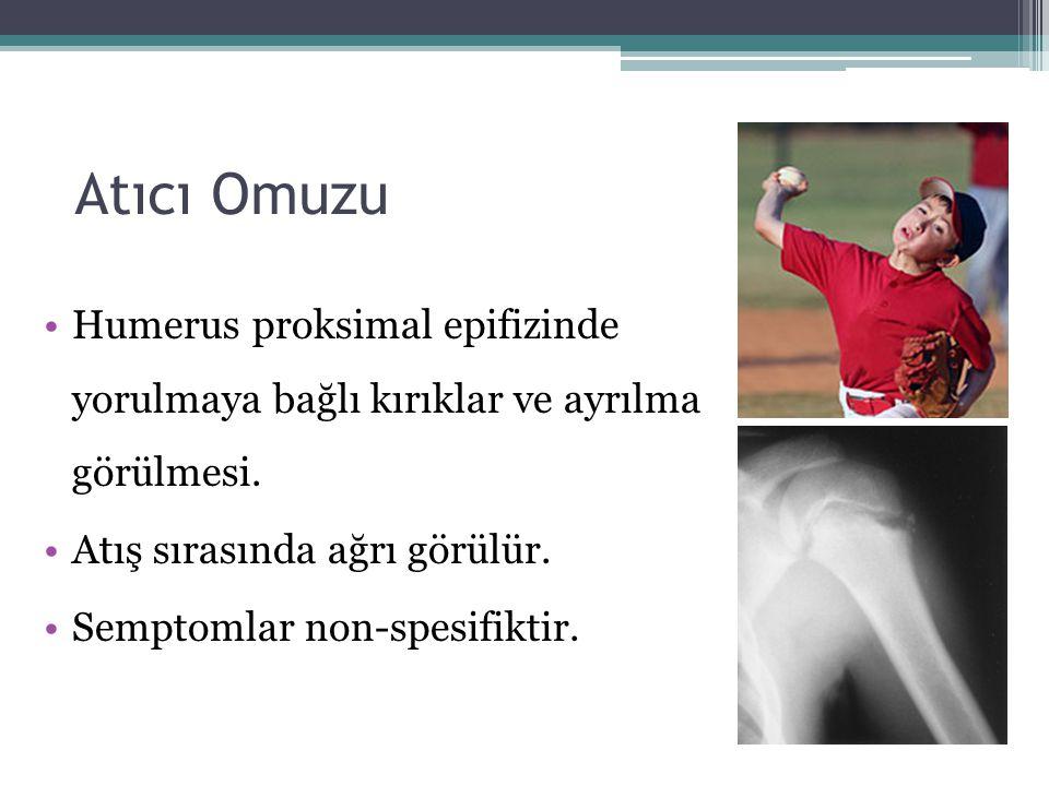 Atıcı Omuzu Humerus proksimal epifizinde yorulmaya bağlı kırıklar ve ayrılma görülmesi. Atış sırasında ağrı görülür. Semptomlar non-spesifiktir.
