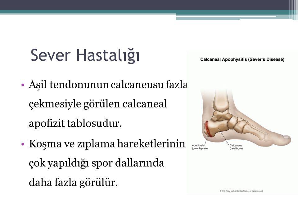 Sever Hastalığı Aşil tendonunun calcaneusu fazla çekmesiyle görülen calcaneal apofizit tablosudur. Koşma ve zıplama hareketlerinin çok yapıldığı spor
