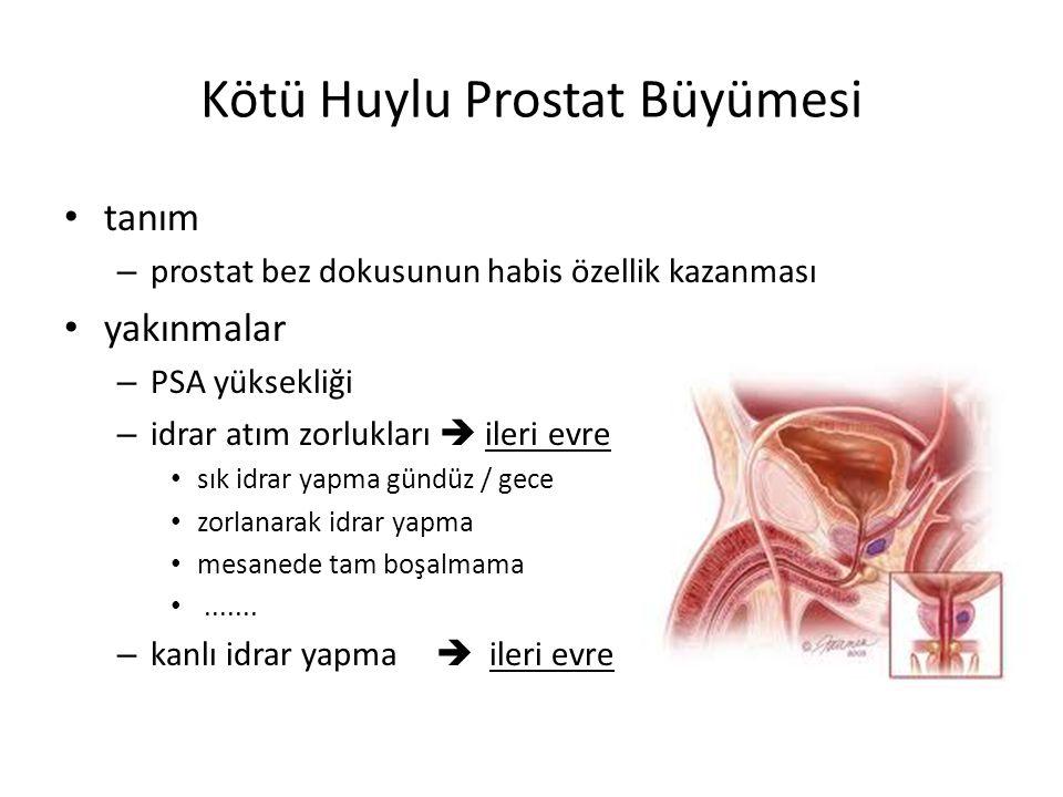 Kötü Huylu Prostat Büyümesi tanım – prostat bez dokusunun habis özellik kazanması yakınmalar – PSA yüksekliği – idrar atım zorlukları  ileri evre sık