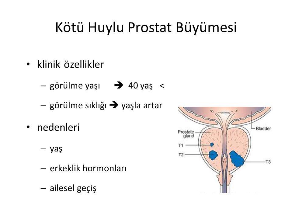 Kötü Huylu Prostat Büyümesi klinik özellikler – görülme yaşı  40 yaş < – görülme sıklığı  yaşla artar nedenleri – yaş – erkeklik hormonları – ailese
