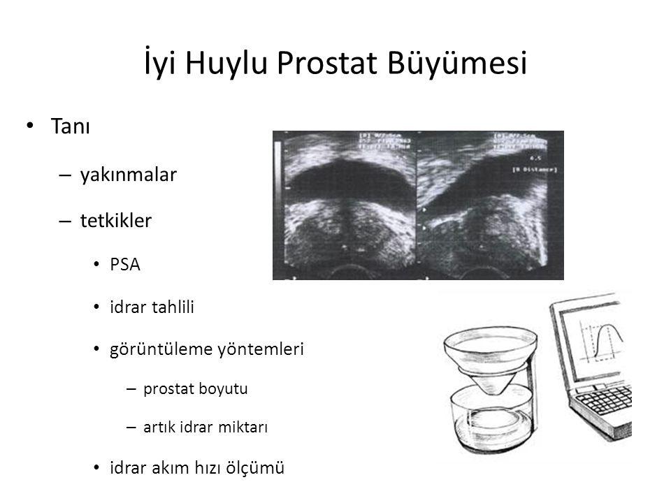 İyi Huylu Prostat Büyümesi Tanı – yakınmalar – tetkikler PSA idrar tahlili görüntüleme yöntemleri – prostat boyutu – artık idrar miktarı idrar akım hı