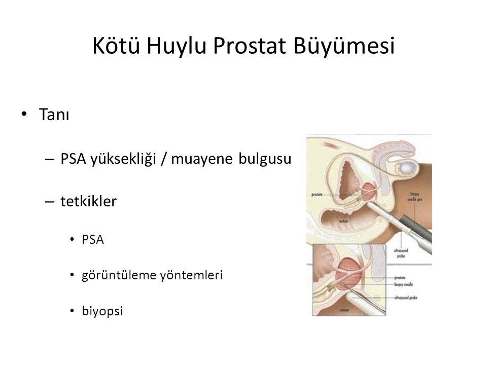 Kötü Huylu Prostat Büyümesi Tanı – PSA yüksekliği / muayene bulgusu – tetkikler PSA görüntüleme yöntemleri biyopsi