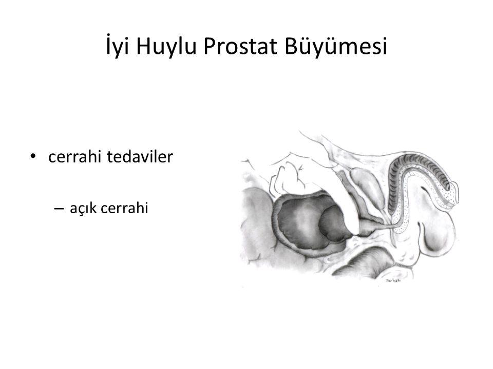 İyi Huylu Prostat Büyümesi cerrahi tedaviler – açık cerrahi