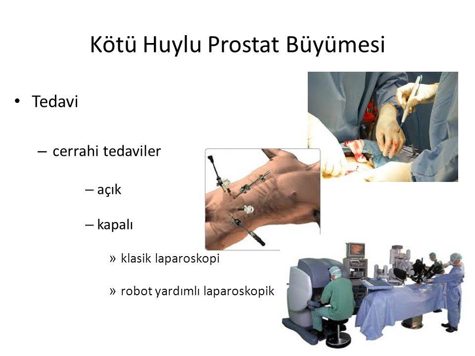 Kötü Huylu Prostat Büyümesi Tedavi – cerrahi tedaviler – açık – kapalı » klasik laparoskopi » robot yardımlı laparoskopik
