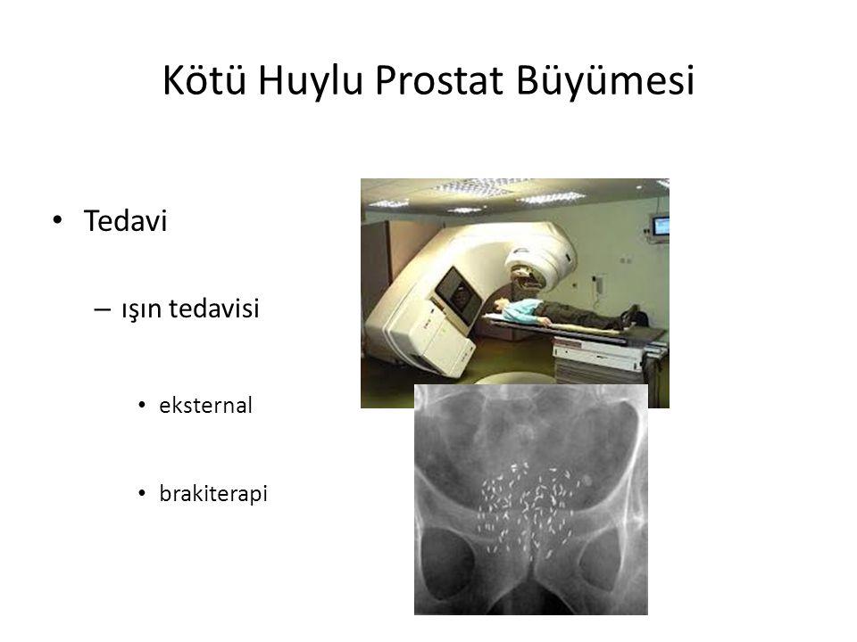 Kötü Huylu Prostat Büyümesi Tedavi – ışın tedavisi eksternal brakiterapi