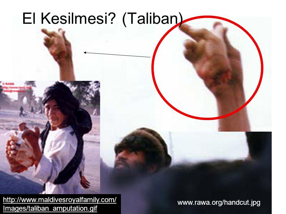 www.rawa.org/handcut.jpg El Kesilmesi? (Taliban) http://www.maldivesroyalfamily.com/ Images/taliban_amputation.gif